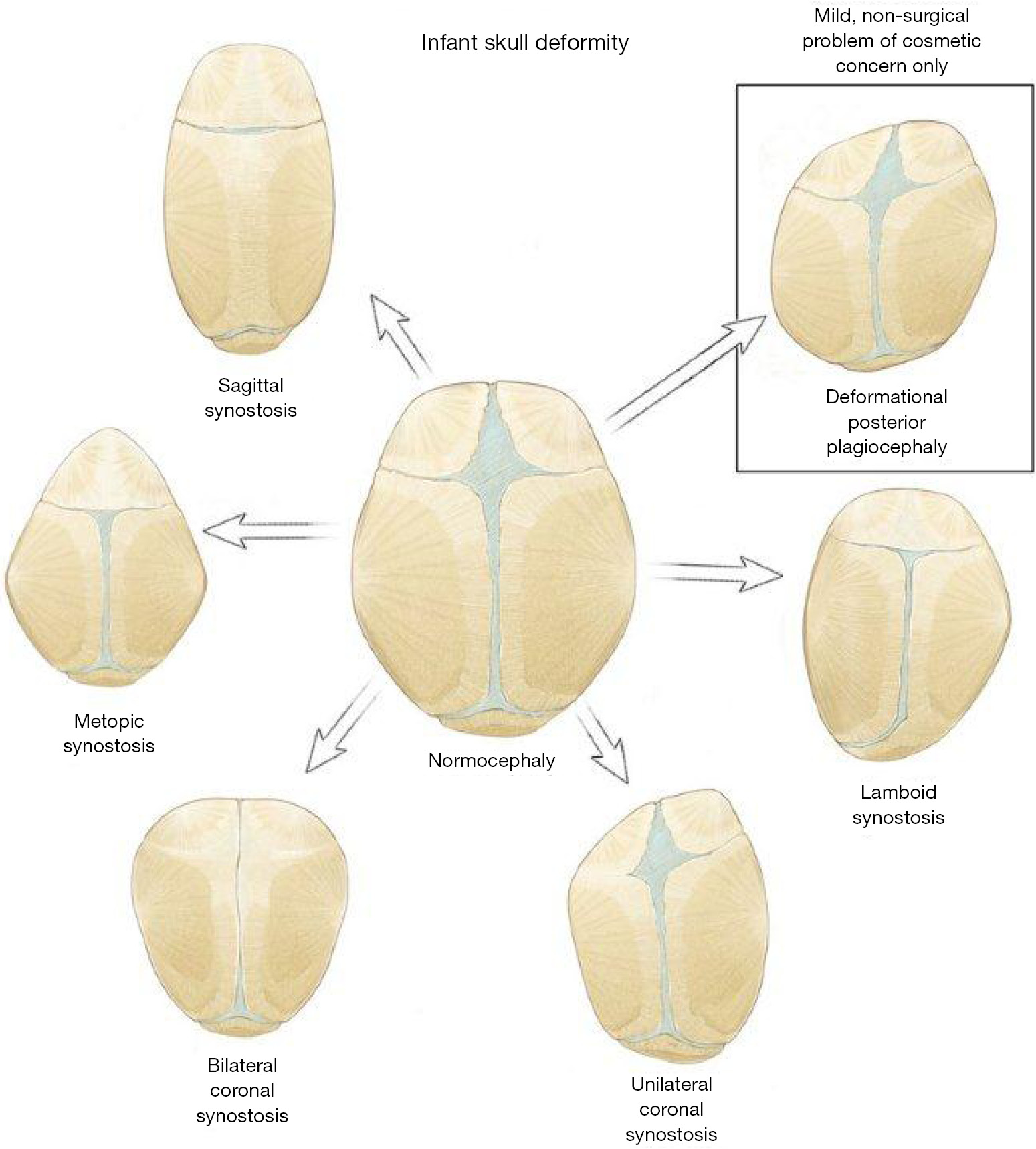 Endoscopic craniosynostosis repair - Proctor - Translational Pediatrics